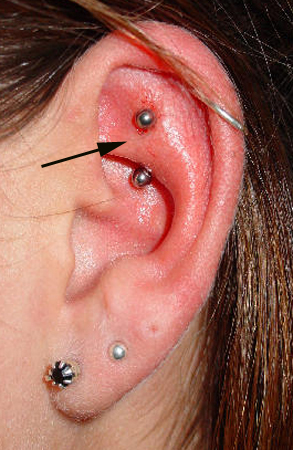 Rook-Piercing-Haven-Body-Arts-Piercing-Tattoo-Northampton-Ma-01060
